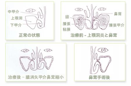 上顎洞炎と鼻茸の治療(上顎洞洗浄療法)前後の比較図