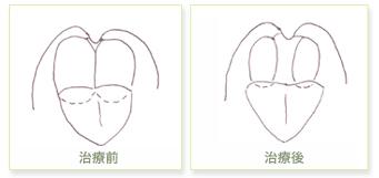肥大扁桃の治療(高周波電気凝固手術)前後の比較図
